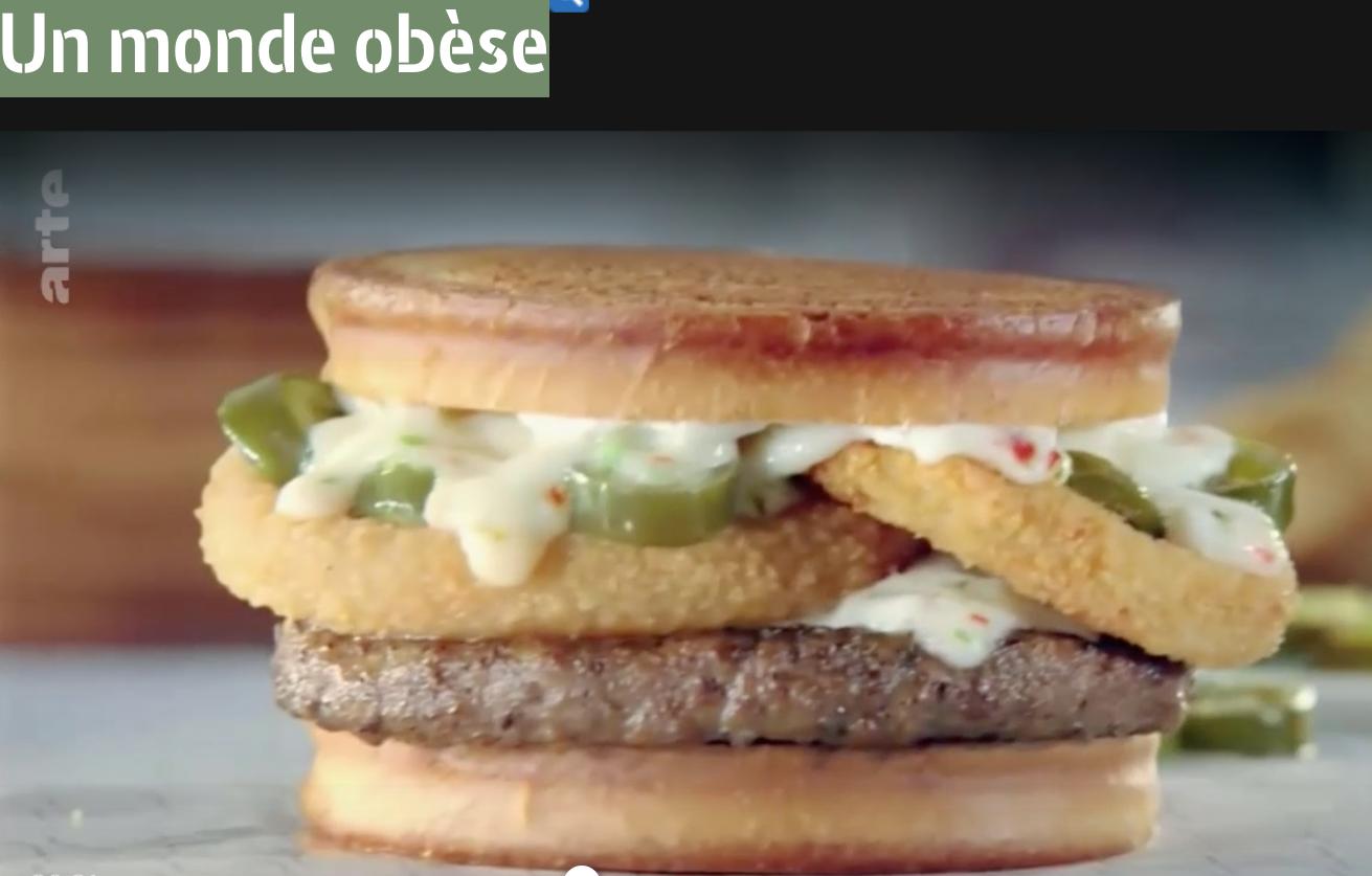 """Sur Arte, la """"pandémie"""" dramatique de l'obésité"""